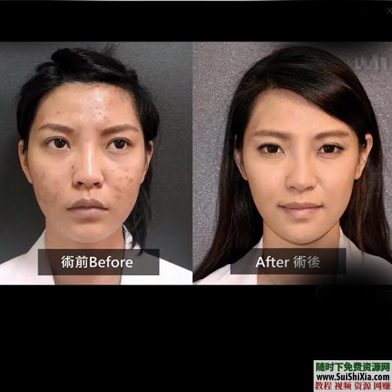 【某宝重金购买系列】皮肤管理视频教程,美容面部清洁祛痘排毒焕肤实战资料大全